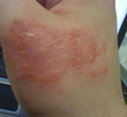 Asthma And Eczema4