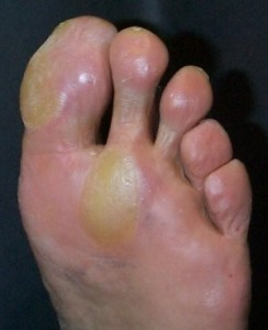 Blisters & Calluses