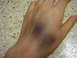 Bruises over the hand