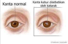 Contoh kanta mata yang normal dan katarak (legap)