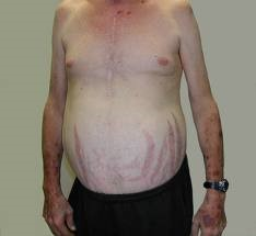 Cushing's syndrome with central obesity and abdominal striae
