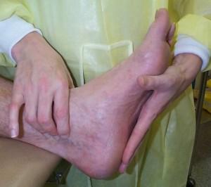 Foot examination6