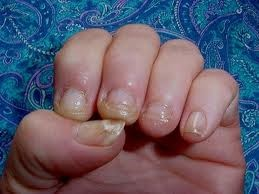 Fungal infections of finger nails