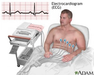 How resting ECG is conducted [2]