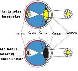 Kanta jelas dan katarak menyebabkan kesan berlainan pada imej yang dilihat