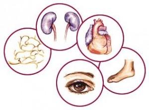 Komplikasi penyakit diabetes boleh melibatkan pelbagai organ