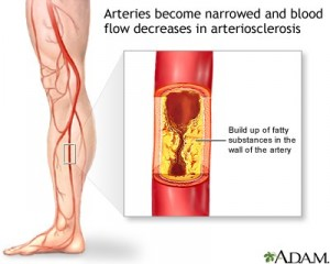 Peripheral Vascular Disease (PVD) in Diabetics