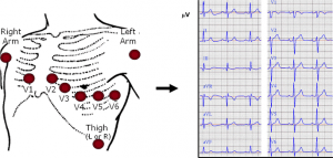 Placement of electrodes on the chest and normal ECG recording [2]