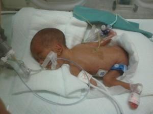 Premature baby2