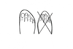 Shoe shape must match foot shape