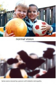 This illustration showed the image which is not improved with the usage of contact lens or glasses