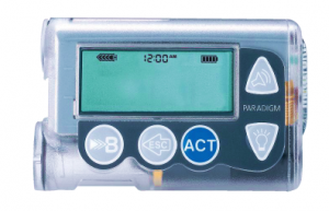 Insulin_Pump_in_Diabetes_1